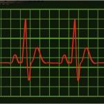Как измерить пульс на iPhone 4